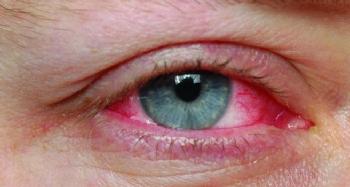 Konjonktivit Nedir, Konjonktivit Neye Denir, Kırmızı Göz Hastalığı, Konjonktivit  ve Koronavirüs